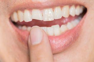 Odbudowa zębów metodą Bondingu