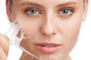 Jak sobie radzić zimą ze skórą atopową?
