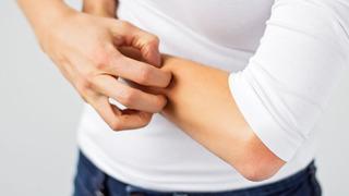 Zimowy problem - atopowe zapalenie skóry