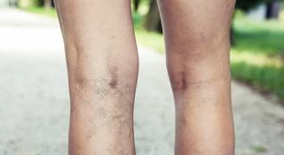 Żylaki nóg - jak zapobiegać i leczyć?