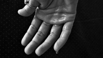 Nadmierna potliwość może dotyczyć każdej okolicy ciała, w tym dłoni. Jaki preparat wybrać na nadmierną potliwość
