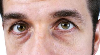 Cienie pod oczami - przyczyny, choroby, których mogą być oznaką