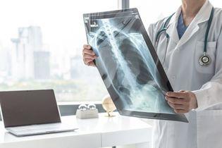 Przewlekła obturacyjna choroba płuc a astma – różnice i podobieństwa