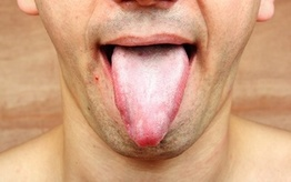 Najlepsze produkty na grzybicę jamy ustnej