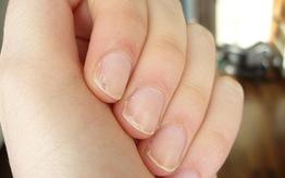 Najlepsze produkty na rozdwajające się paznokcie