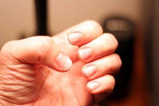 Najlepsze produkty na słabe paznokcie