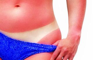 Najlepsze produkty na oparzenia słoneczne