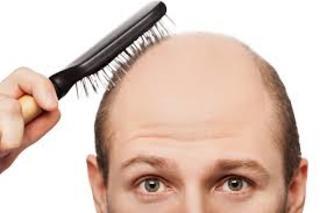 Najlepsze produkty na łysienie