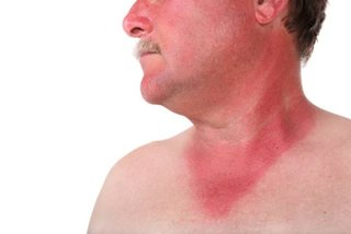 Najlepsze produkty na alergię skórną