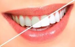 Najlepsze produkty do wybielania zębów
